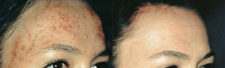 skanderborg-hudpleje-akne