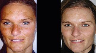 skanderborg-hudpleje-pigmentforandring